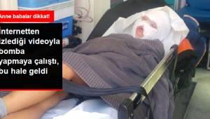 Şarköy'de Çocukların Yaptığı El Yapımı ''BOMBA'' Patladı !